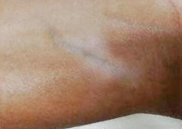 Vitiligo Vitilsi